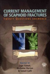 Current Management of Scaphoid Fractures : Twenty Questions Answered