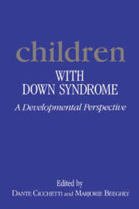 Children with Downs Syndrome : A Developmental Perspective