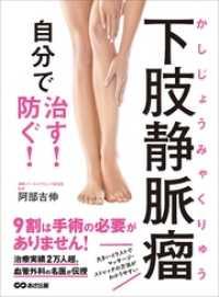 下肢静脈瘤 自分で治す!防ぐ!―――治療実績2万人超。血管外科の名医が伝授