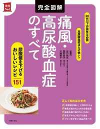 紀伊國屋書店BookWebで買える「完全図解 痛風・高尿酸血症のすべて」の画像です。価格は1,360円になります。