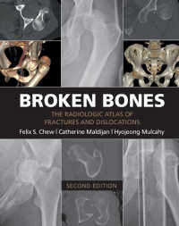 骨折・脱臼アトラス(第2版)<br>Broken Bones : The Radiologic Atlas of Fractures and Dislocations(2)