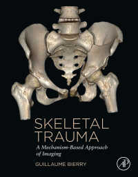 骨格外傷:メカニズムに即した画像法<br>Skeletal Trauma : A Mechanism-Based Approach of Imaging