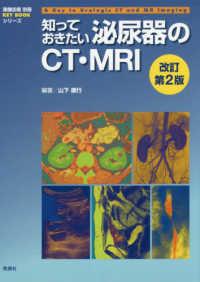 知っておきたい泌尿器のCT・MRI