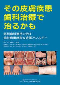 その皮膚疾患歯科治療で治るかも ; 医科歯科連携で治す歯性病巣感染&金属アレルギー