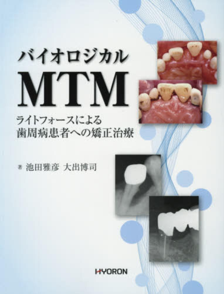 バイオロジカルMTM - ライトフォースによる歯周病患者への矯正治療